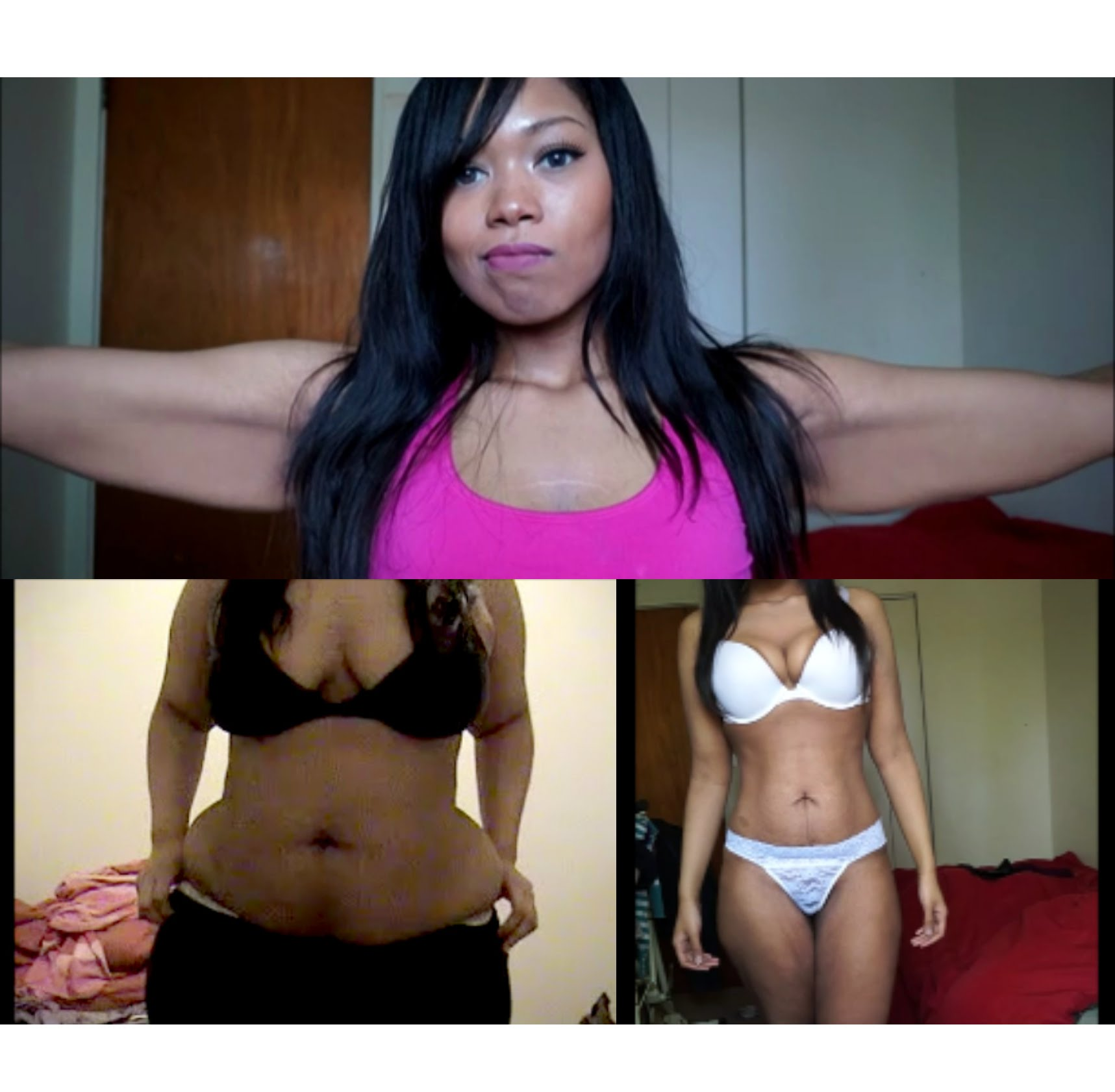 Loose Skin After 150 Pound Weight Loss Raw