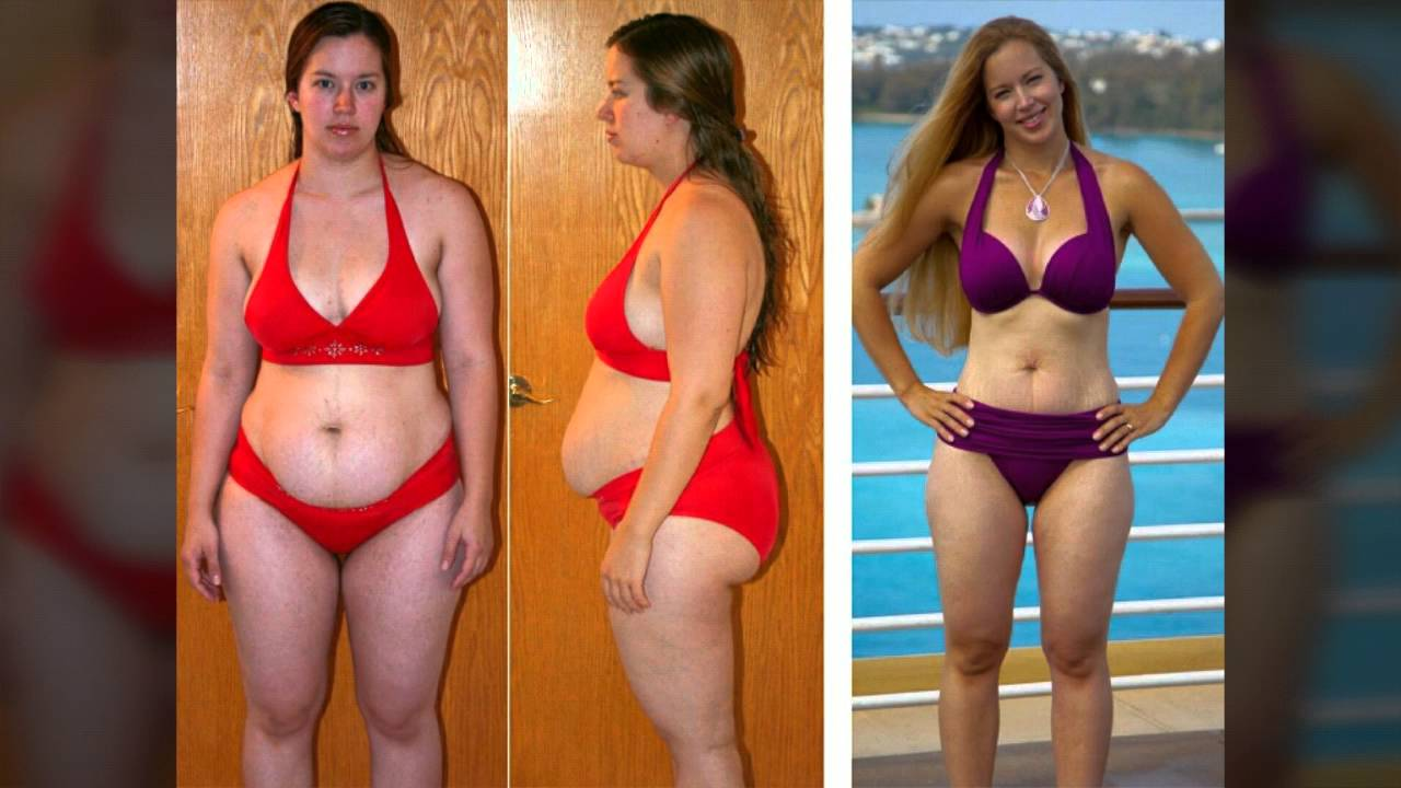 Weight Loss Photos Before And After Samd Day Before and after weight loss photo